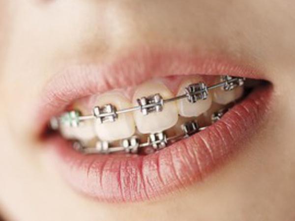 Aparat Ortodontyczny Dentysta Stomatolog Ortodonta